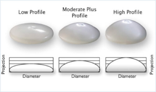 silicone diagram Implants silicone