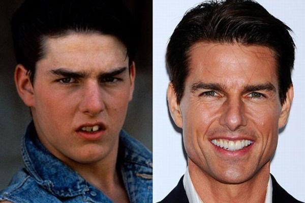 Tom Cruise Chirurgie dentaire